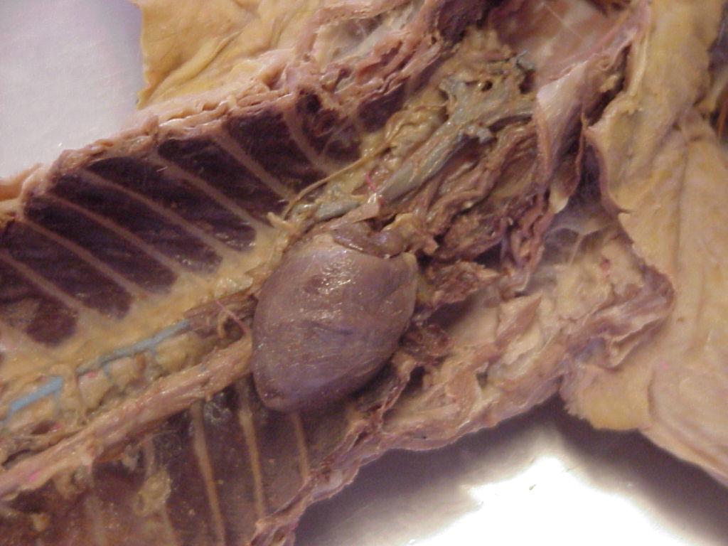 Renal Artery Cat