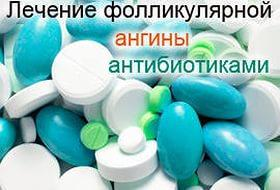 Как лечить фолликулярная ангина какие антибиотики
