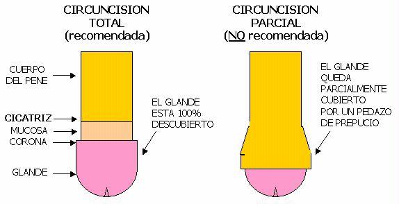 pene circuncidado erecto