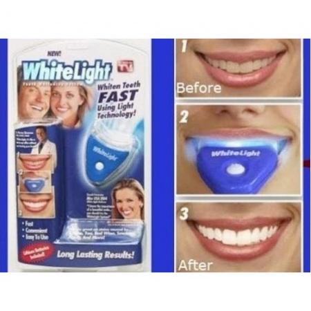 whitelight teeth whitening system. Black Bedroom Furniture Sets. Home Design Ideas