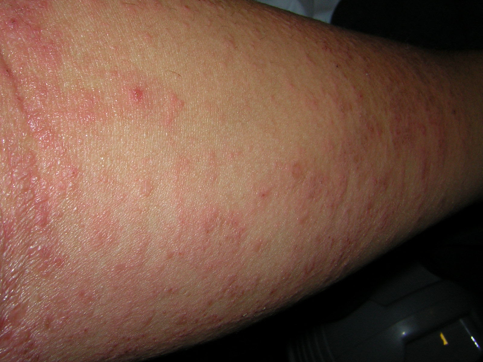 Scabies American Academy of Dermatology