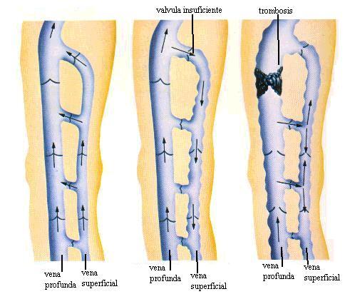 Trombosis venosa superficial miembro superior tratamiento