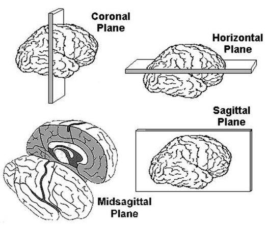 Essential Neuroanatomy - Brodmann's classification