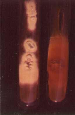 El hongo de las uñas en los pies el tratamiento mikozanom las revocaciones