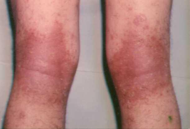El abedul a atopicheskom la dermatitis