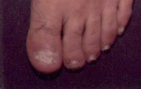 El hongo de las uñas al tratamiento las manos