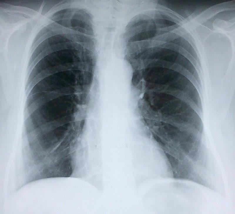 Bula Pulmonar lobulo medio