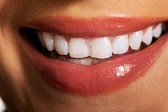 Best Tooth Whitening Reddit